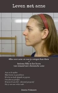 Het complete e-boek Leven met acne